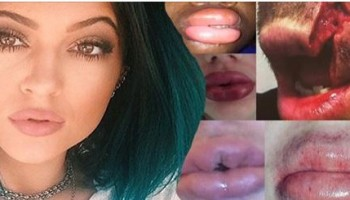 секси-устни-или-обезобразяване19