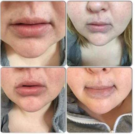 секси-устни-или-обезобразяване9
