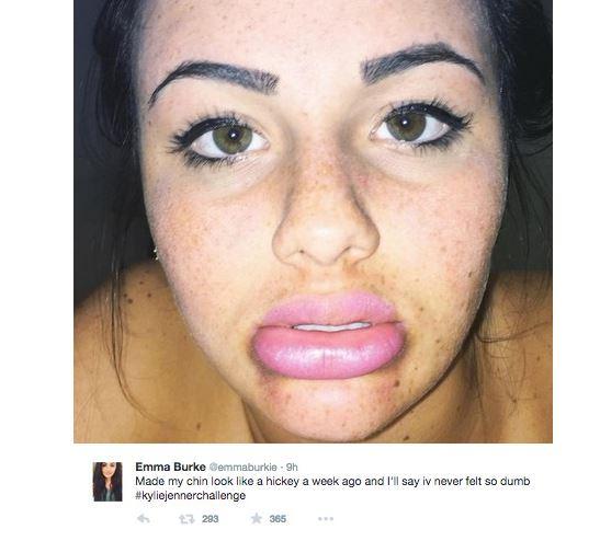 секси-устни-или-обезобразявне-2