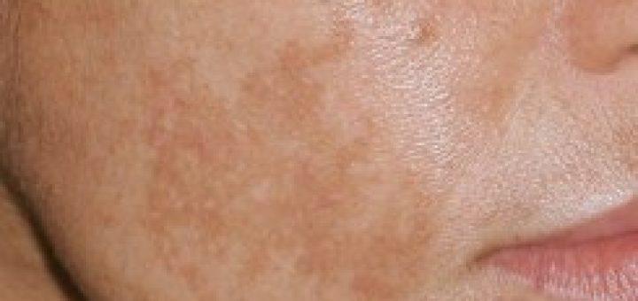 тъмни петна по кожата