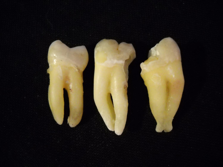 човешки зъб