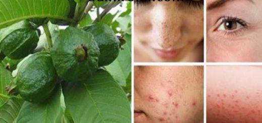 Използвайте Гуава, за да се Освободите от Бръчки, Акне, Тъмни Петна и Кожни Алергии