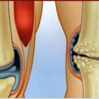 6 Eстествени Противовъзпалителни Средства за Лечение на Болки в Коленете и Ставите!